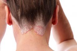 Psoriasis neck